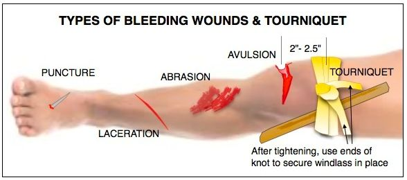 MIDWEST OUTDOORS18-DEC- TYPES OFBLEEDING WOUNDS-1